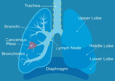 Diagram showing the lungs upper, middle, and lower lobes. As well as lymph nodes, bronchi, and bronchioles